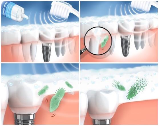 Ultrahangos fogkrémek, mikrobuborékok működése - jopatikus.hu