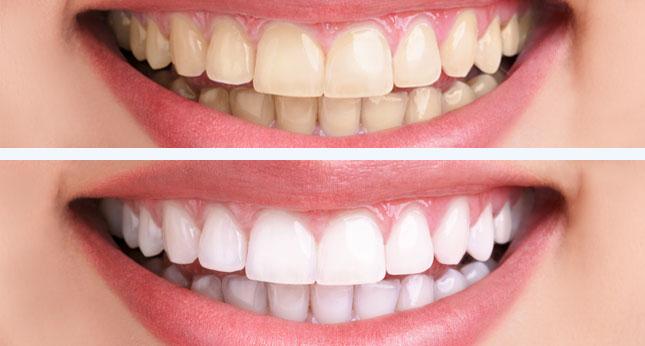 Fehérebb fogak Emmi-dent ultrahangos fogkefével - jopatikus.hu