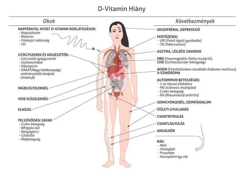 D-vitamin fontossága